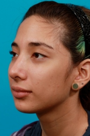 After Photo - Nose Surgery - Case #2506 - Rhinoplasty (Nose Reshaping) - Oblique View