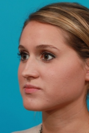 Before Photo - Nose Surgery - Case #2762 - Closed Rhinoplasty - Oblique View