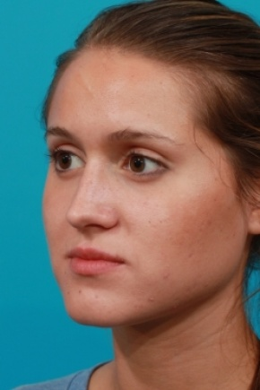 After Photo - Nose Surgery - Case #2762 - Closed Rhinoplasty - Oblique View