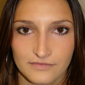 After Photo - Nose Surgery - Case #2777 - Open Rhinoplasty - Frontal View