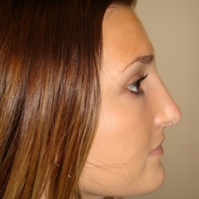 Before Photo - Nose Surgery - Case #2777 - Open Rhinoplasty - Oblique View
