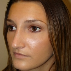 Before Photo - Nose Surgery - Case #2777 - Open Rhinoplasty - Posterior View
