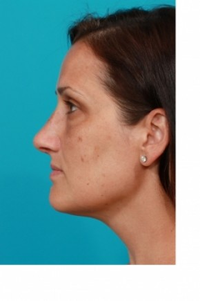 After Photo - Nose Surgery - Case #3433 - Open Rhinoplasty - Lateral View