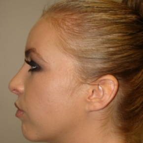 After Photo - Nose Surgery - Case #2890 - Open Rhinoplasty - Lateral View
