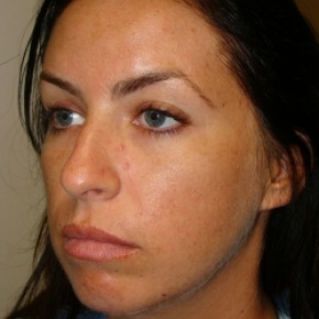 Before Photo - Nose Surgery - Case #2890 - Open Rhinoplasty - Posterior View