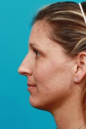Before Photo - Nose Surgery - Case #2900 - Open Rhinoplasty - Lateral View