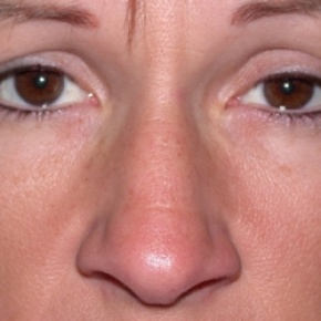 Before Photo - Nose Surgery - Case #2622 - Rhinoplasty - Frontal View