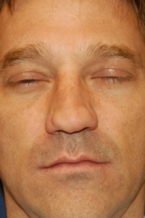 Before Photo - Nose Surgery - Case #2980 - Rhinoplasty - Frontal View