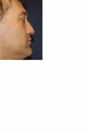 Before Photo - Nose Surgery - Case #2980 - Rhinoplasty - Lateral View
