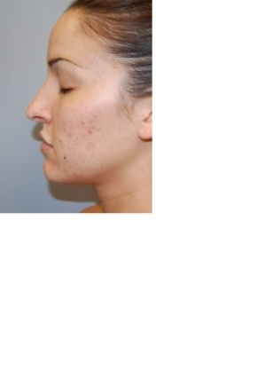 Before Photo - Nose Surgery - Case #2981 - Rhinoplasty - Lateral View