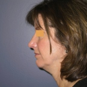 After Photo - Nose Surgery - Case #3450 - Rhinoplasty - Lateral View