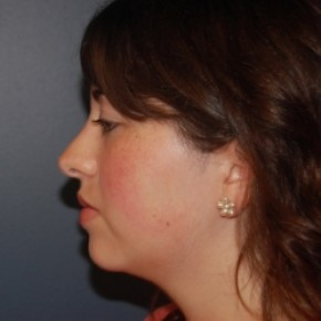 After Photo - Nose Surgery - Case #3471 - Rhinoplasty - Lateral View