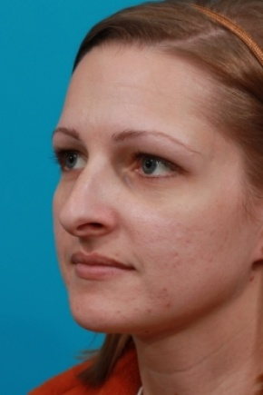 Before Photo - Nose Surgery - Case #2510 - Rhinoplasty (Nose Reshaping) - Oblique View