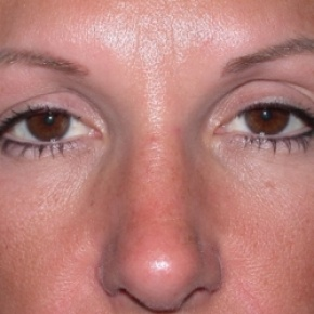 After Photo - Nose Surgery - Case #2622 - Rhinoplasty - Frontal View