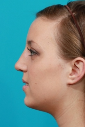 After Photo - Nose Surgery - Case #2503 - Rhinoplasty (Nose Reshaping) - Lateral View