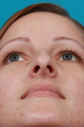 Before Photo - Nose Surgery - Case #2510 - Rhinoplasty (Nose Reshaping) - Worm's Eye View