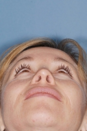 After Photo - Nose Surgery - Case #2553 - Revision Rhinoplasty - Worm's Eye View