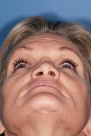 Before Photo - Nose Surgery - Case #2554 - Revision Rhinoplasty - Worm's Eye View