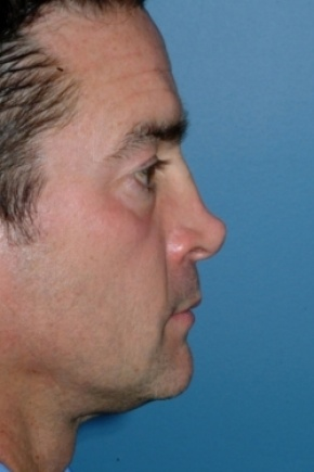 Before Photo - Nose Surgery - Case #2555 - Revision Rhinoplasty - Lateral View