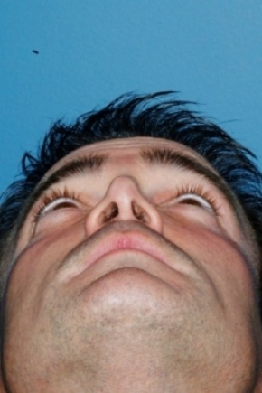 Before Photo - Nose Surgery - Case #2555 - Revision Rhinoplasty - Worm's Eye View