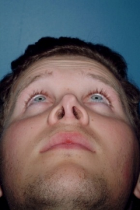 Before Photo - Nose Surgery - Case #2556 - Revision Rhinoplasty - Worm's Eye View