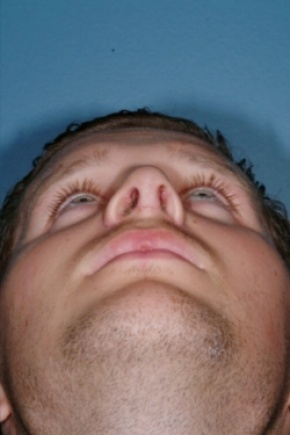 After Photo - Nose Surgery - Case #2556 - Revision Rhinoplasty - Worm's Eye View