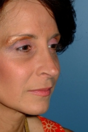 After Photo - Nose Surgery - Case #2557 - Revision Rhinoplasty - Oblique View
