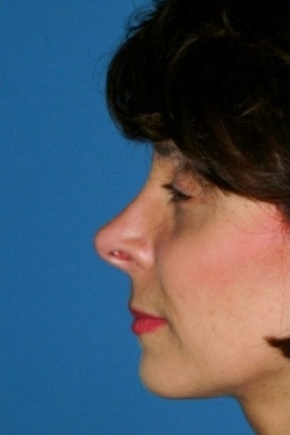 Before Photo - Nose Surgery - Case #2557 - Revision Rhinoplasty - Lateral View