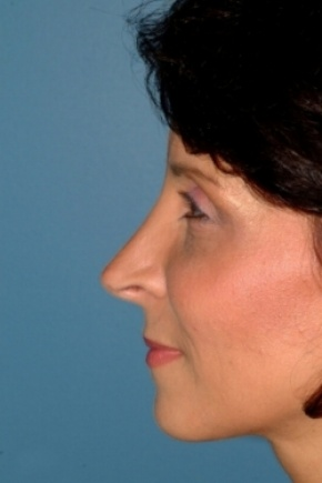 After Photo - Nose Surgery - Case #2557 - Revision Rhinoplasty - Lateral View