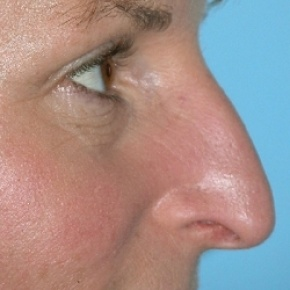 Before Photo - Nose Surgery - Case #2623 - Rhinoplasty - Oblique View