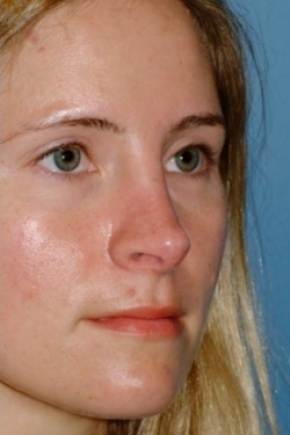After Photo - Nose Surgery - Case #2558 - Revision Rhinoplasty - Oblique View