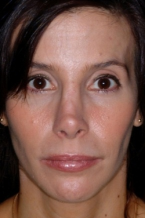 Before Photo - Nose Surgery - Case #2560 - Revision Rhinoplasty - Frontal View