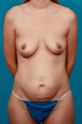 Before Photo - Tummy Tuck - Case #2489 - Mommy Makeover - Frontal View