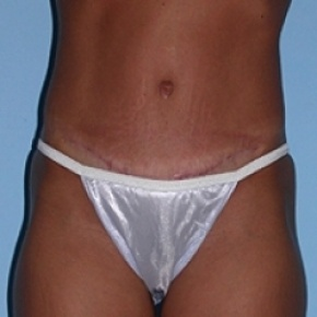 After Photo - Tummy Tuck - Case #2600 - Frontal View