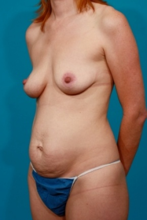 Before Photo - Tummy Tuck - Case #2489 - Mommy Makeover - Oblique View