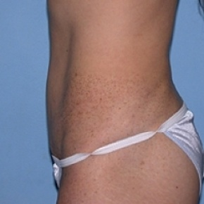 After Photo - Tummy Tuck - Case #2602 - Oblique View