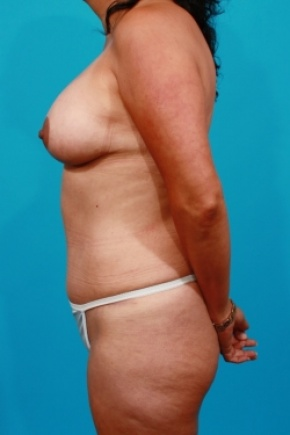 After Photo - Tummy Tuck - Case #2490 - Mommy Makeover - Lateral View