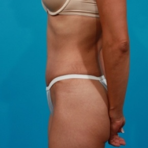 After Photo - Tummy Tuck - Case #2535 - Lateral View