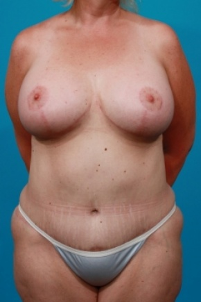 After Photo - Tummy Tuck - Case #2537 - Mommy Makeover - Frontal View