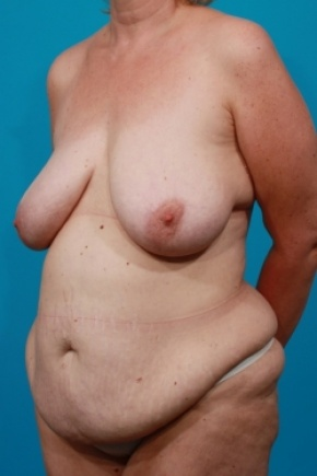 Before Photo - Tummy Tuck - Case #2537 - Mommy Makeover - Oblique View