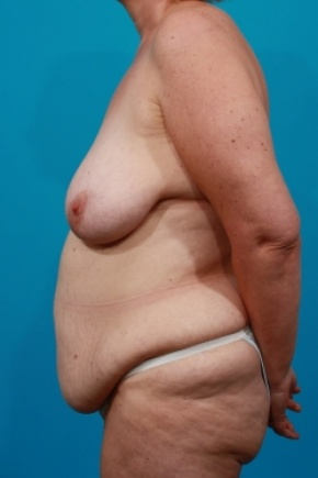 Before Photo - Tummy Tuck - Case #2537 - Mommy Makeover - Lateral View