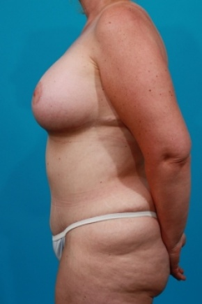 After Photo - Tummy Tuck - Case #2537 - Mommy Makeover - Lateral View