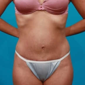 After Photo - Tummy Tuck - Case #2543 - Tummy Tuck & Flank Lipo - Frontal View