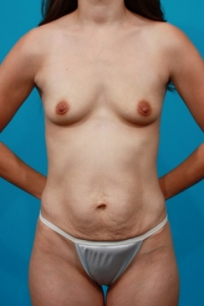 Before Photo - Tummy Tuck - Case #2491 - Mommy Makeover - Frontal View