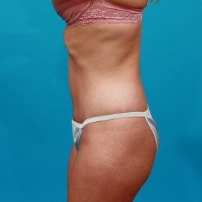 After Photo - Tummy Tuck - Case #2543 - Tummy Tuck & Flank Lipo - Lateral View