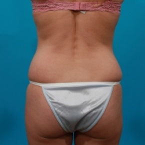 Before Photo - Tummy Tuck - Case #2543 - Tummy Tuck & Flank Lipo - Posterior View