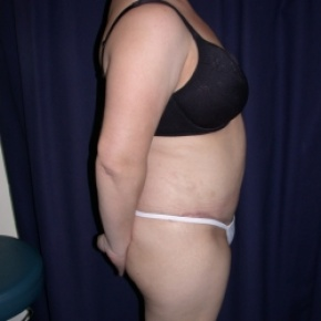 After Photo - Tummy Tuck - Case #2736 - Tmmy Tuck/ Lipo-Abdominoplasty - Lateral View