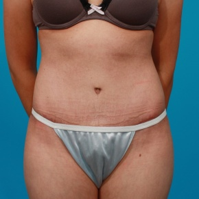 After Photo - Tummy Tuck - Case #2630 - Frontal View