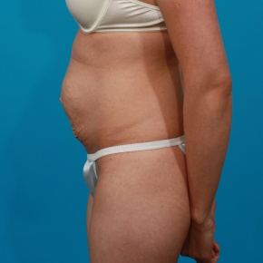 Before Photo - Tummy Tuck - Case #2630 - Lateral View