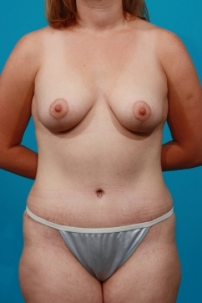 After Photo - Tummy Tuck - Case #2652 - Mommy Makeover - Frontal View